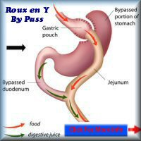 Gastric By-Pass in France cost Less than in the UK
