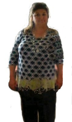 Helen-B-before gastric sleeve surgery in France