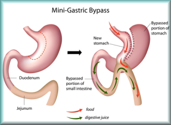 price of Mini gastric bypass in france