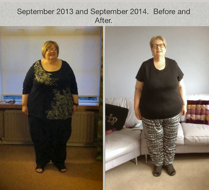 Wilma McD cost of Gastric Sleeve story Surgery