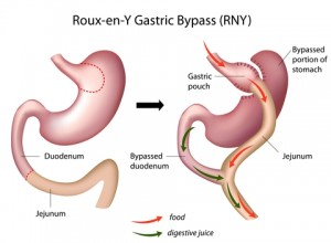 Roux-en-Y Gastric ByPass Surgery