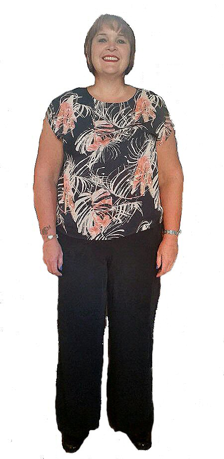 helen who had a gastric sleeve in February 2015