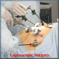 gastric sleeving laprascopic surgery